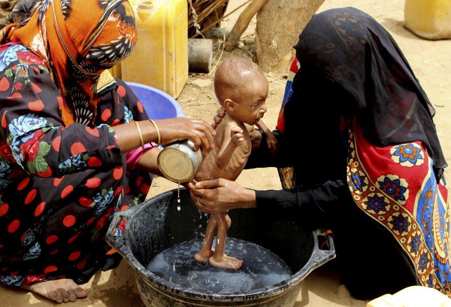 Ett svårt undernärt spädbarn pysslas om i provinsen Hajjah i västra Jemen.